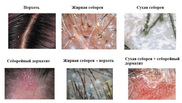 Виды заболеваний кожи головы.