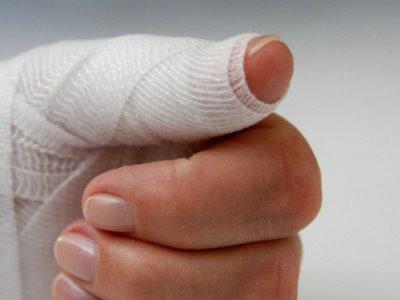 Как лечить ногти на руках, если они отходят от кожи
