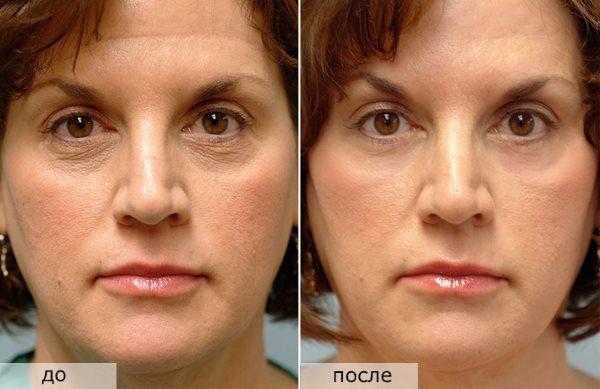 Фото до и после активного пользования сывороткой «Hydra 3D Rexaline».