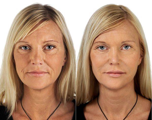 Фото до и после использования косметики «Swiss Image».