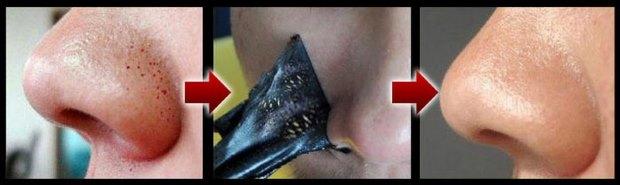 Как применять Black mask (черную маску): пошаговая инструкция
