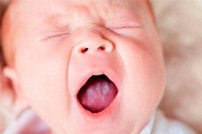 молочница во рту у грудничка лечение