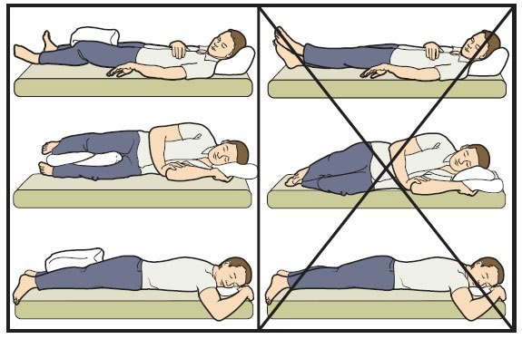 Как правильно спать после операция эндопротезирование тазобедренного сустава воспаление плюсне-предплюсневых суставов