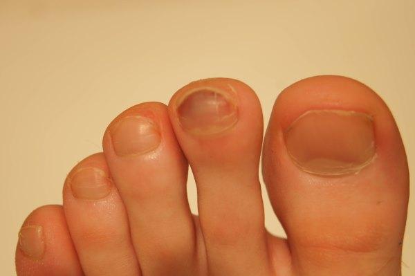 Как избавиться от утолщаются ногти на ногах