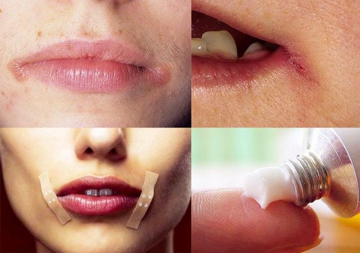 Правильное лечение заедов в уголках губ. Лекарства и народные методы