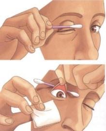 Устранение из глаза мелкого предмета