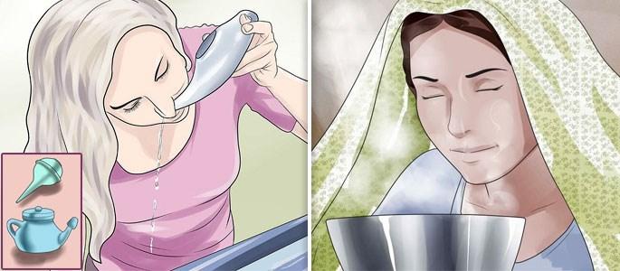 Гайморит у беременных. Как лечить безопасно для здоровья
