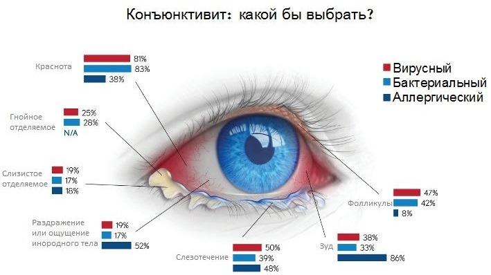 Конъюнктивит глаз. Как лечить у взрослых народными средствами