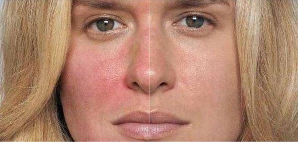 Купероз: до и после лечения кожи лица аскорутином
