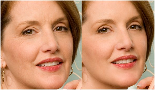 Плазмолифтинг лица: фото до и после