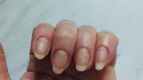 Ногти после снятия шеллака