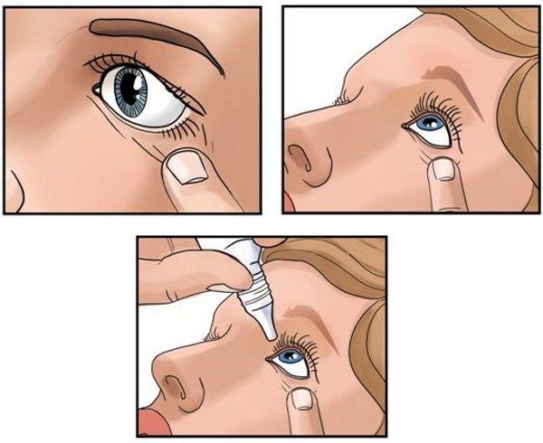 Как закапать глаза