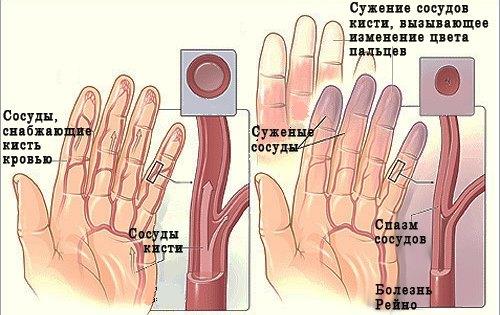 Склеродермия - что это такое, виды, симптомы, лечение, клинические рекомендации, Секреты красоты и здоровья женщины