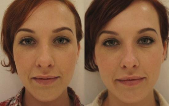 Коррекция формы лица филлерами в скулы: особенности, фото до и после