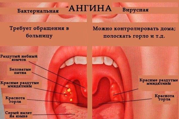 Ангина у взрослых с температурой. Симптомы и формы заболевания