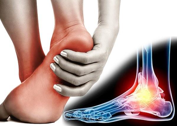 Артроз стопы – симптомы