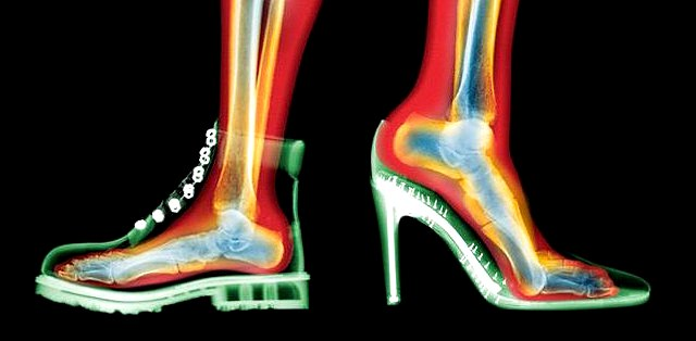 Артрит пальцев ног симптомы и лечение