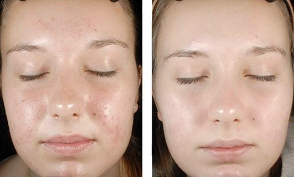 Гоммаж крем для лица - очищающий пилинг, маска, скраб. Отзывы