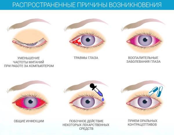 Конъюнктивит глаз. Причины, лечение у взрослых. Как передается конъюнктивит