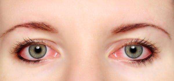 Конъюнктивит глаз - симптомы, признаки и проявления у взрослых