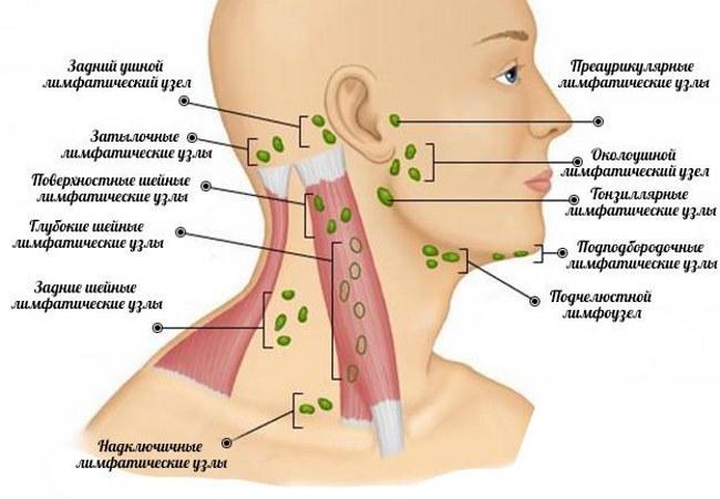 Чем лечение лимфоузлов на шее в домашних условиях