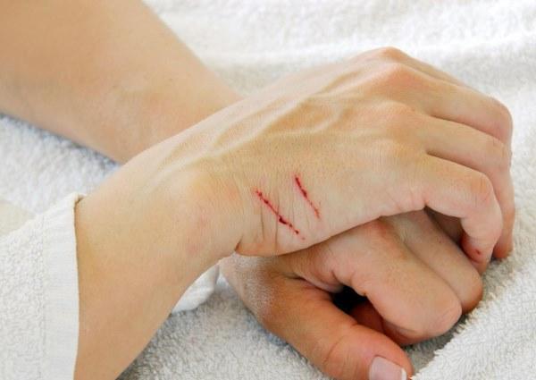 Шипица – причины, лечение. Как удалить шипицу: народные средства, мази