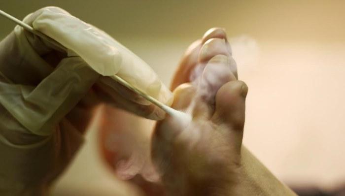 Шипица – причины, лечение