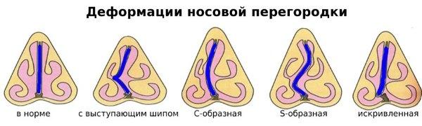 Синусит - заразен или нет? Основные причины болезни