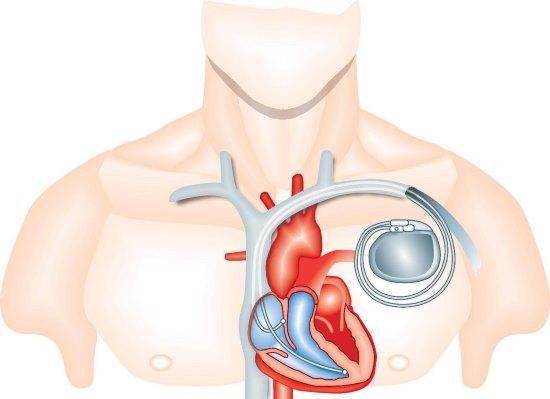 Сколько стоит кардиостимулятор сердца. Виды и особенности кардиостимуляторов
