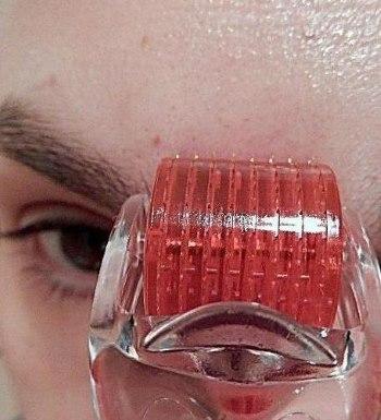 Лора (сыворотка) - мезоэффект с мезороллером