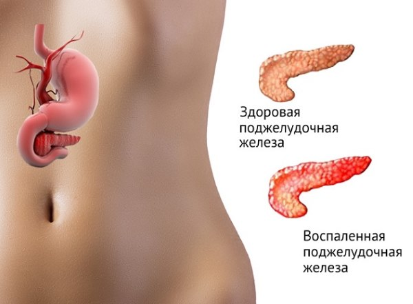 Признаки боли в поджелудочной железе у человека. Симптомы