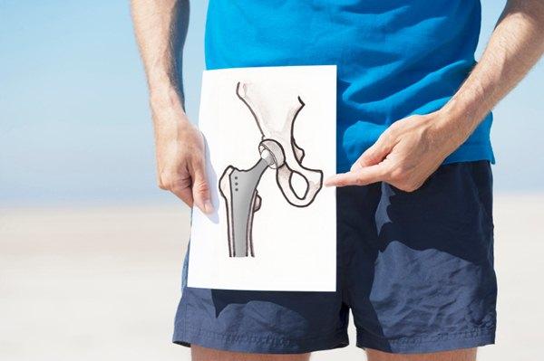Эндопротезирование тазобедренного сустава. Реабилитация, упражнения, гимнастика