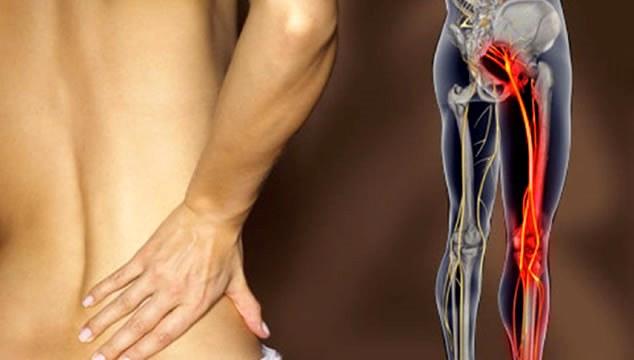 Люмбоишиалгия – что это за болезнь, стадии, симптомы, лечение в домашних условиях