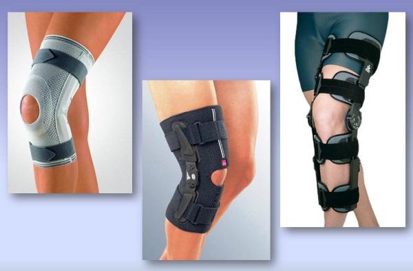 Ортопедические наколенники при артрозе. Виды, цена, как использовать