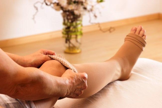 Сколько времени носить компрессионные чулки после эндопротезирования тазобедренного сустава