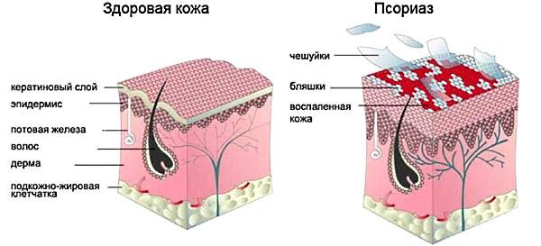 Струя бобра. Лечебные свойства, польза, приготовление и применение настойки