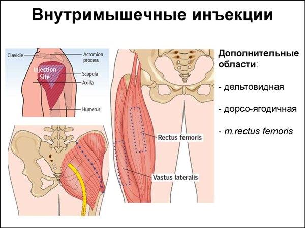Уколы Актовегин внутримышечно. Инструкция, показания к применению взрослым и детям