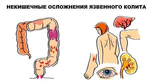 Лекарство лечить вены на ногах