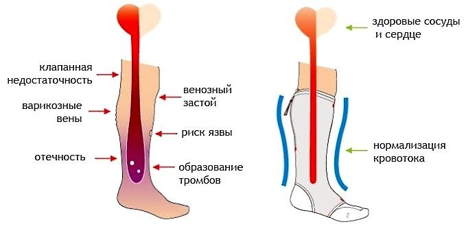 Почему немеет нога от бедра до стопы. Причины и лечение онемения ног