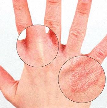 Причины и лечение дерматита на руках. Крема, мази и народные средства