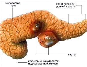 Симптомы боли поджелудочной железы у женщин. Болевые ощущения
