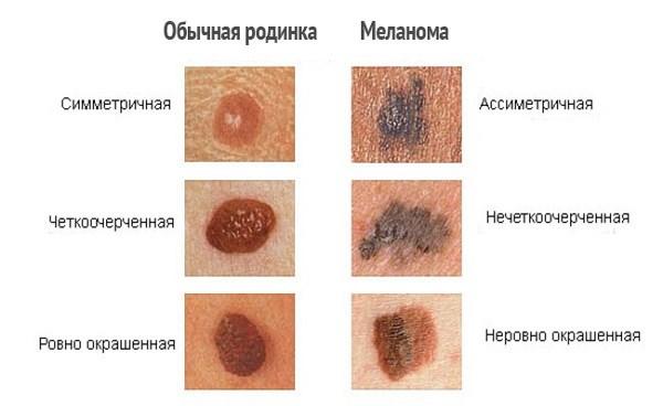 Родимые пятна на теле. Причины появления, виды родимых пятен, насколько они опасны