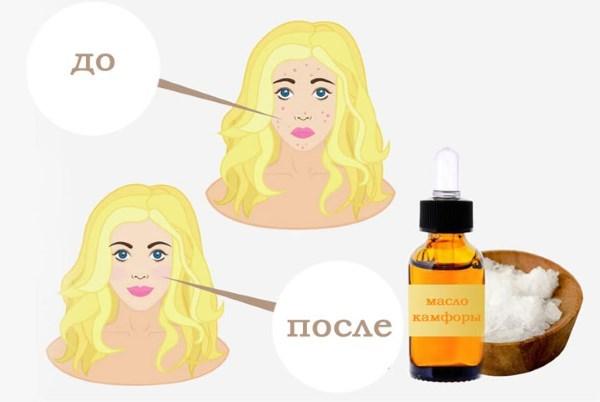 Камфорное масло - применение в медицине и косметологии взрослым и детям. Полезные и лечебные свойства, противопоказания