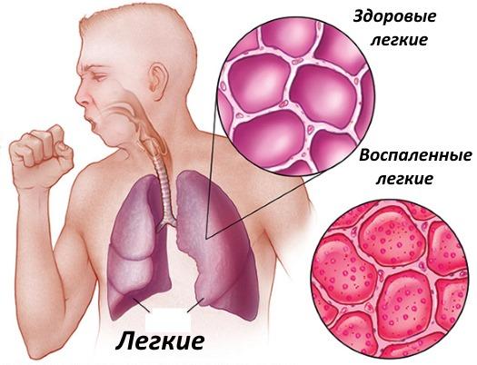 пневмония, воспаление легких
