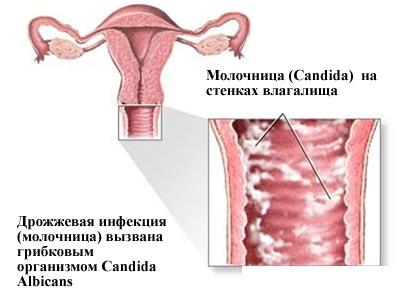 Облепиха. Полезные свойства и противопоказания, рецепты лечения в народной медицине для женщин, мужчин и детей. Как приготовить и применять