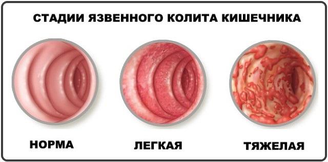 Полынь горькая: лечебные свойства и рецепты применения в народной медицине при диабете, онкологии, в гинекологии, косметологии, кулинарии. Противопоказания