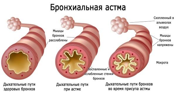 Розмарин - лечебные свойства и противопоказания для женщин и мужчин. Рецепты применения в народной медицине, косметологии для лица и волос
