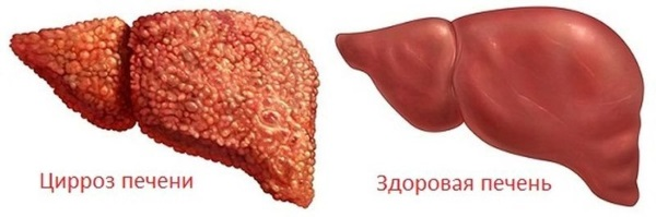Лечебные свойства корня калгана, противопоказания для мужчин, женщин, рецепты приготовления