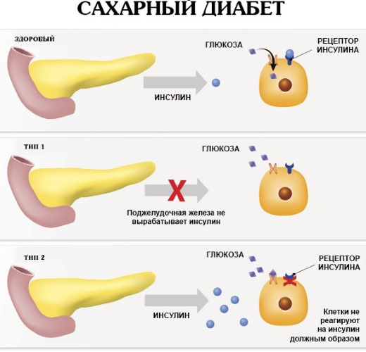 Можжевельник. Лечебные свойства и противопоказания, польза и вред, применение для мужчин, женщин. Плоды, ветки, ягоды, корень, эфирное масло в народной медицине