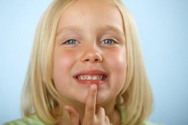 Облепиховое масло: инструкция по применению внутрь и наружно для лечения различных заболеваний, состав, польза и вред